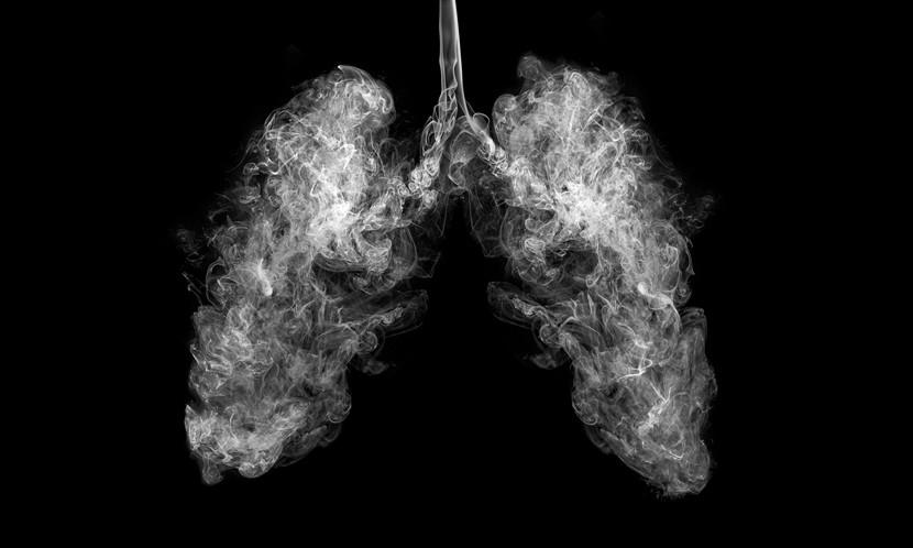 陳文茜、陳佩琪皆罹肺腺癌,為何它盯上亞洲女性?