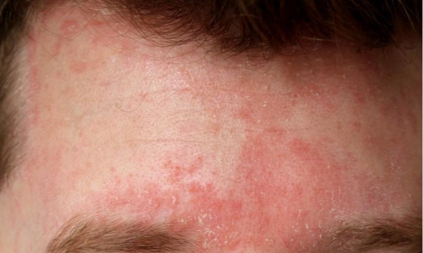 炎 性 皮膚 脂 漏